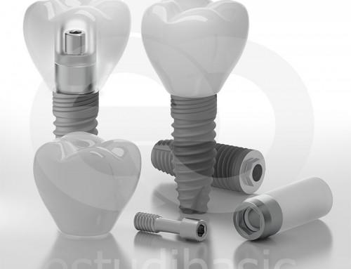 Render de producto 3D de implantes dentales